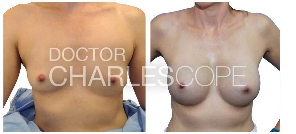 Breast Augmentation 145