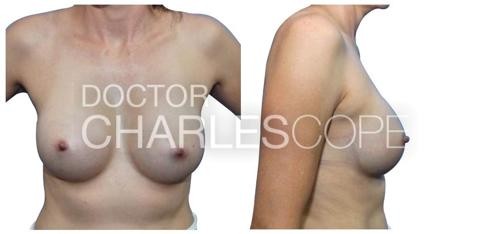 Breast Augmentation 152