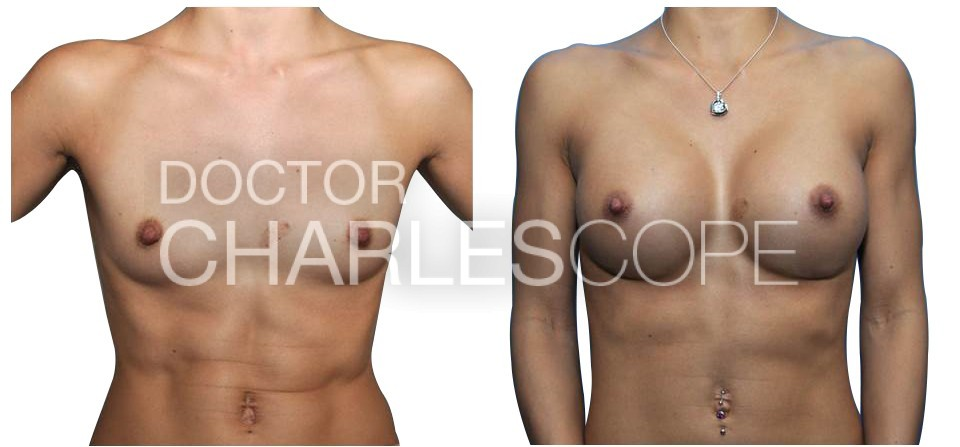 Breast Augmentation 153