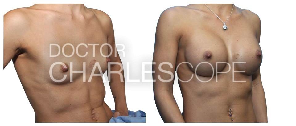 Breast Augmentation 154
