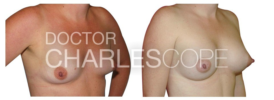 Patient 40yo before and after breast augmentation surgery with Dr Cope, photo 17