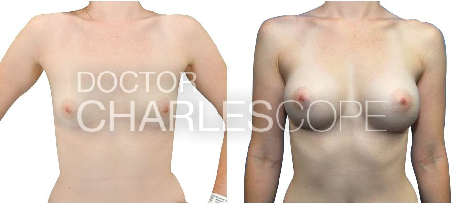 Breast Augmentation 171