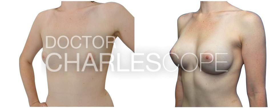 Breast implants, photo gallery 173, before & after