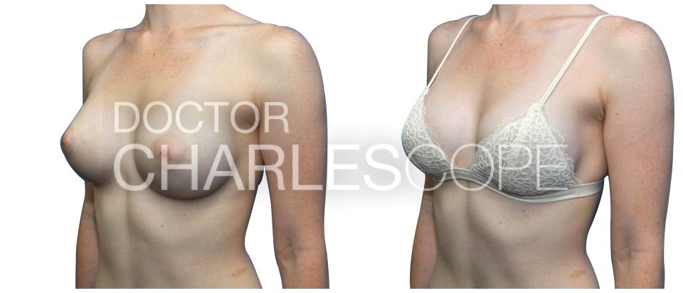 Breast Augmentation 174