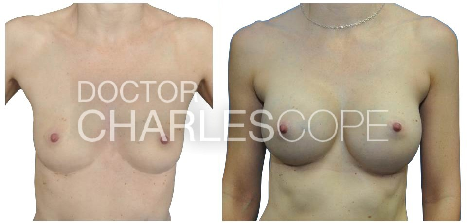 Breast Augmentation 23 2