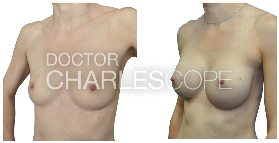Breast Augmentation 24 2