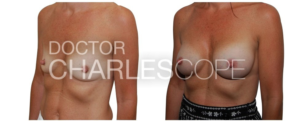 45yo patient before and after breast augmentation at Dr Cope clinic 25