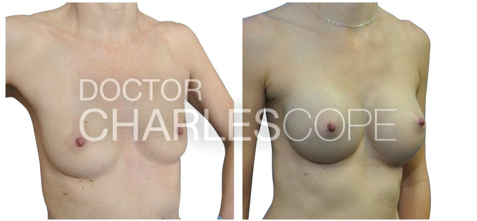 Breast Augmentation 25 2
