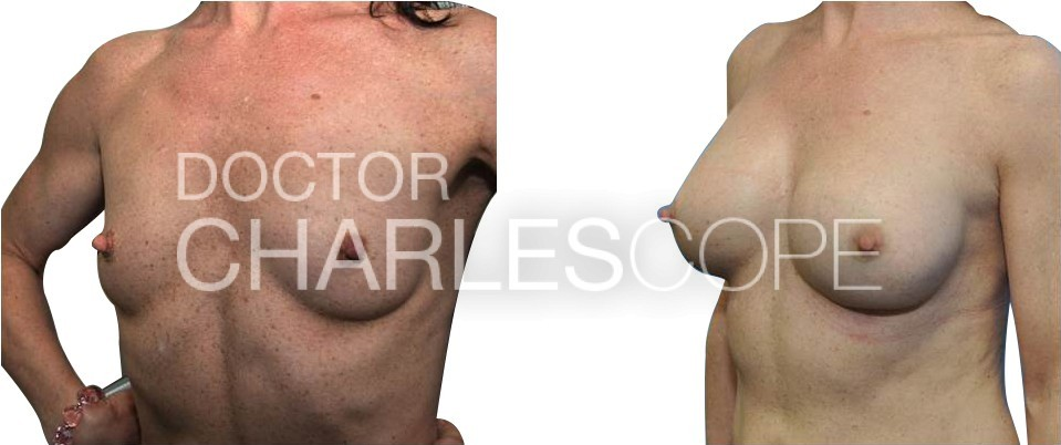 40yo patient before and after breast augmentation surgery, Dr Cope 03-2