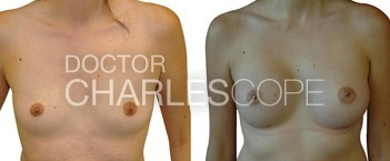 Breast Augmentation 8 2