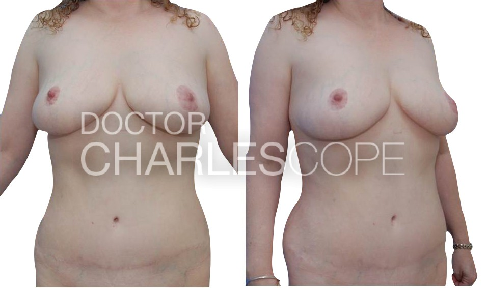 Before and after tummy mummy makeover, Dr Charles Cope Sydney 109