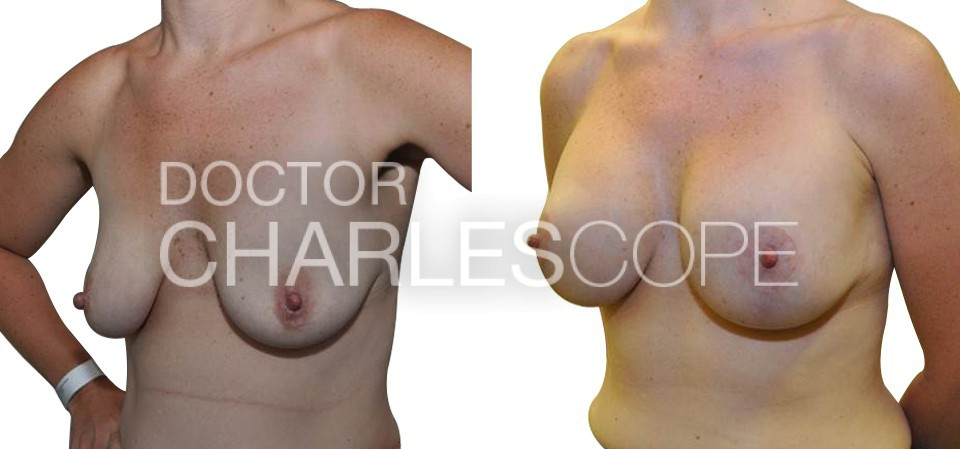 Breast augmentation and lift before and after 116-1, Dr charles Cope