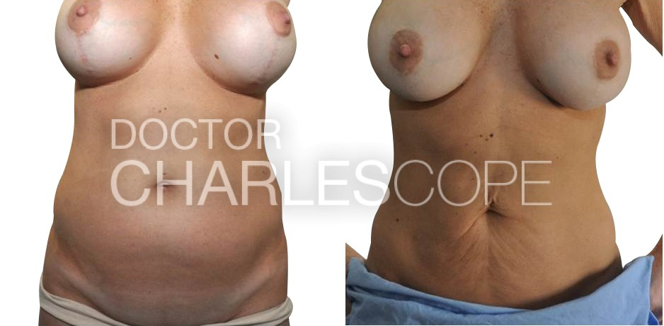 Patient before and after mummy makeover in Sydney with Dr Cope 120