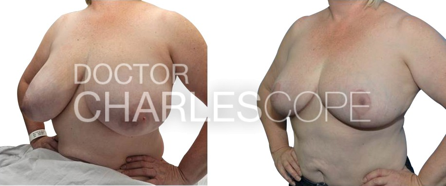Patient before & after breast reduction and breast lift at the same time, photo 130