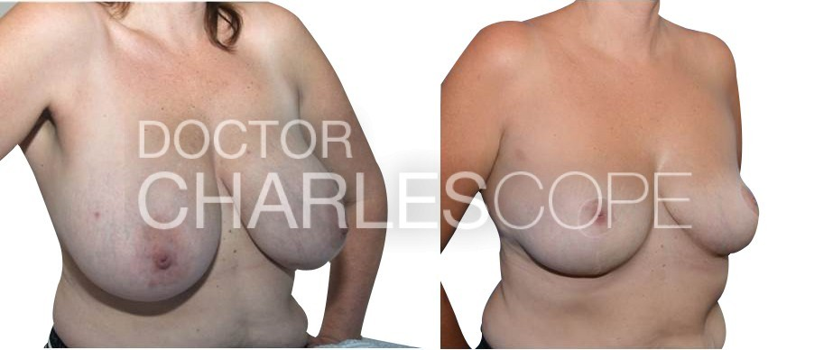 Breast reduction surgery (G cup to D cup), Dr Cope breast gallery 274
