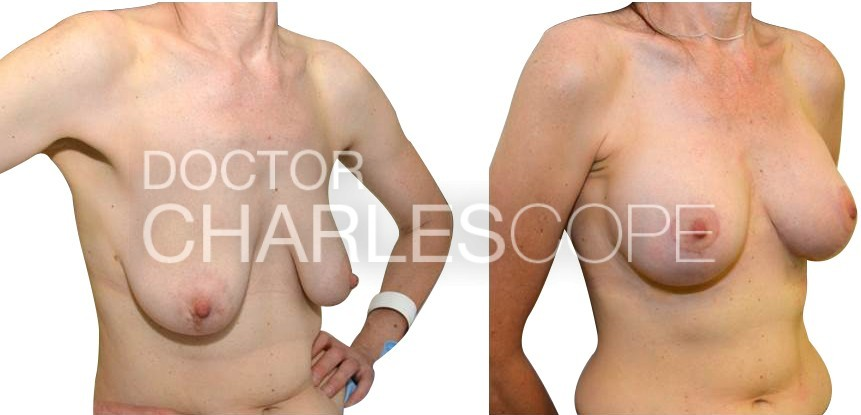 Breast augmentation and mastopexy surgery before & after, 51yo patient 292-1