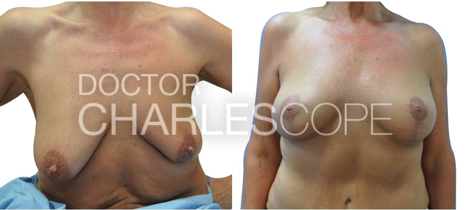 Patient (55yo) before breast augmentation and lift surgery 302-1