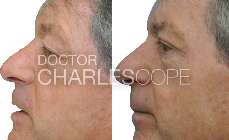 Blepharoplasty photos, male patient before and after surgery 18