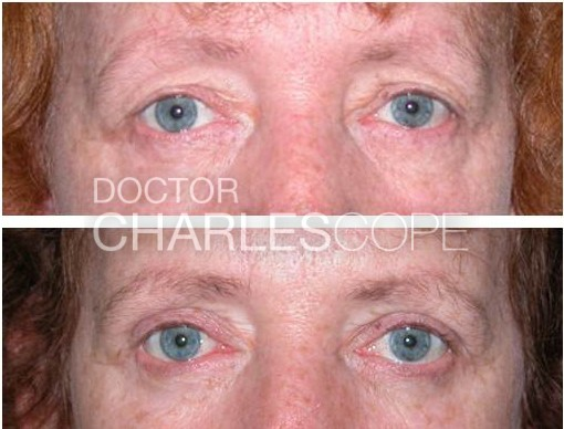 Eyelid surgery gallery, photo 15, front view