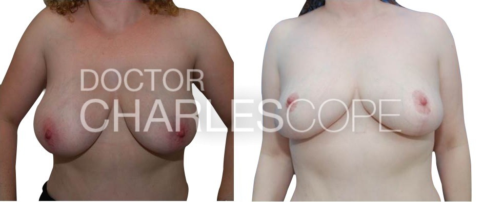 Breast lift (and small reduction, 1 cup) before & after 87, Dr Cope