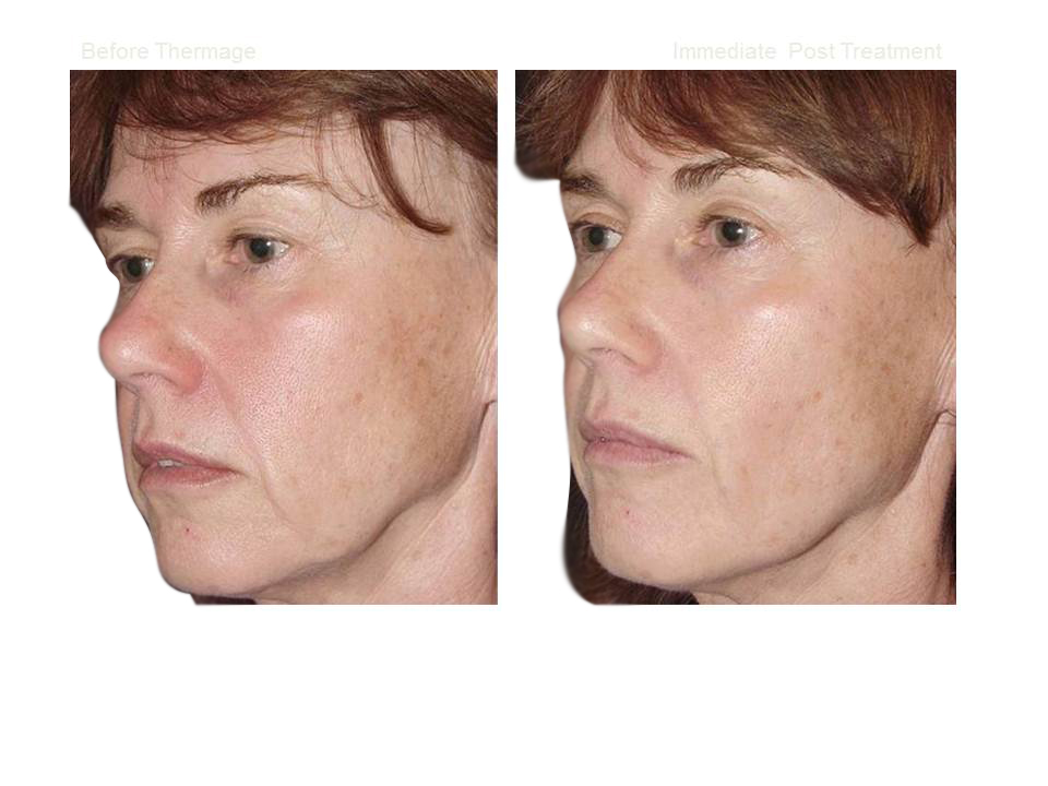 Thermage skin tightening 02