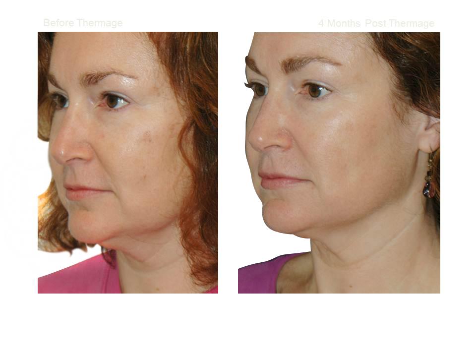 Thermage skin tightening 04