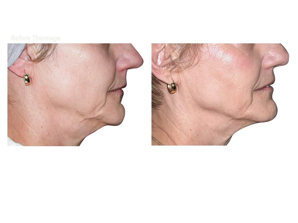 Thermage skin tightening 05