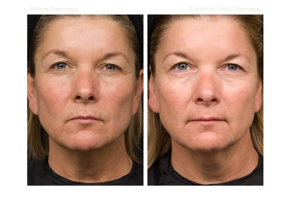 Thermage skin tightening 07