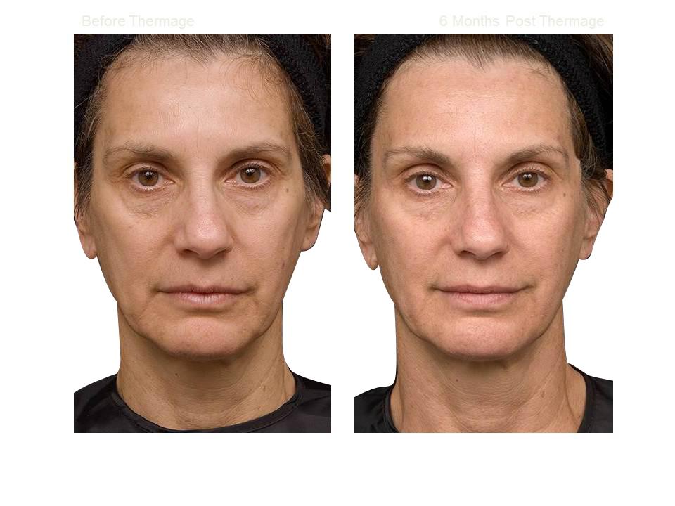Thermage skin tightening 08