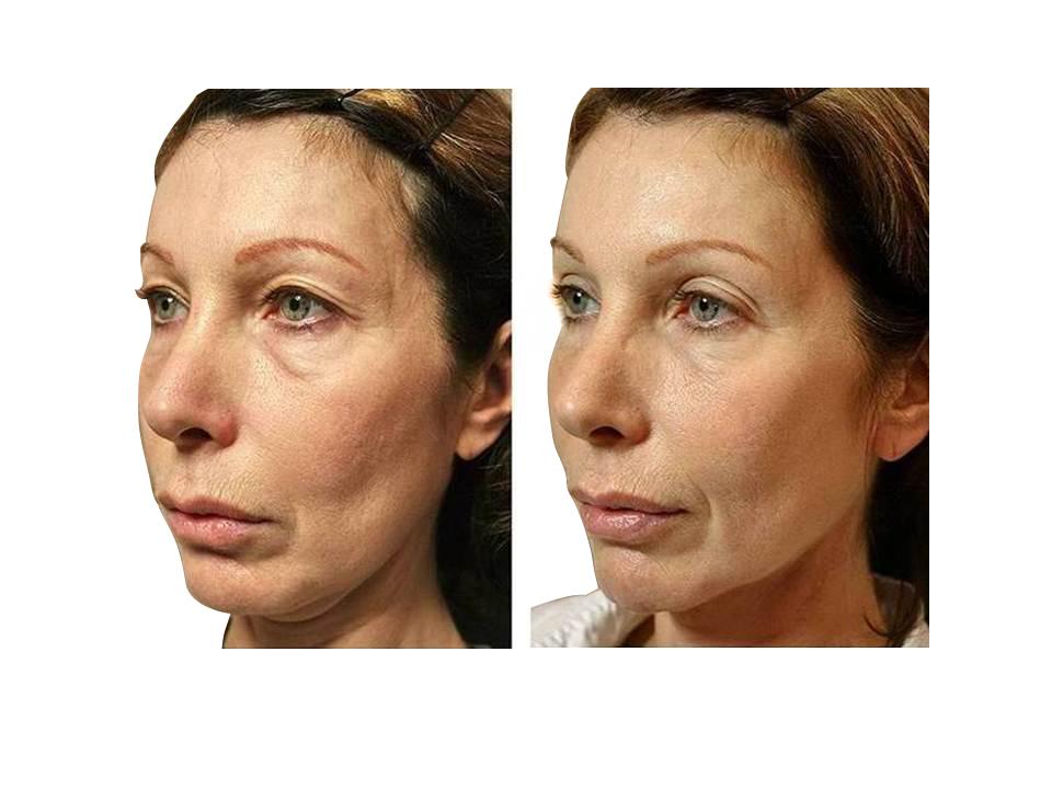 Thermage skin tightening 09