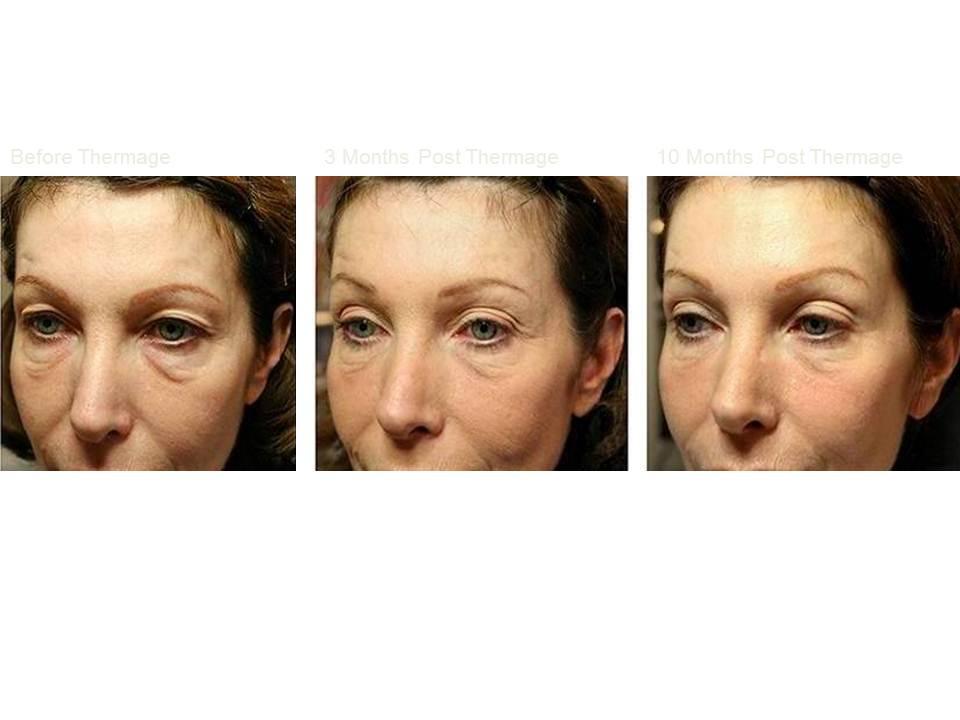 Thermage skin tightening 10