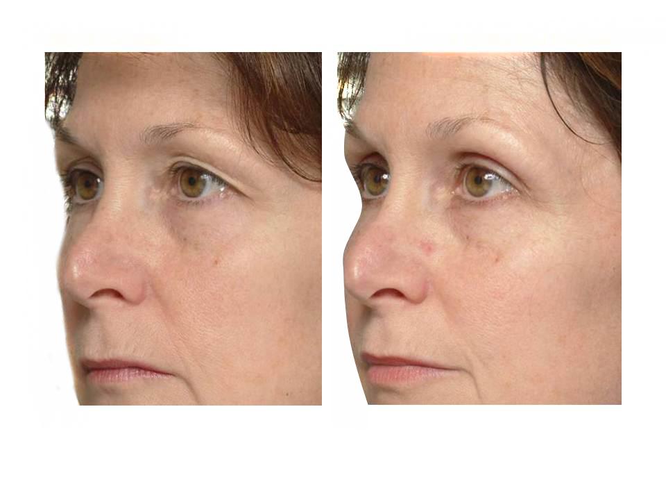 Thermage skin tightening 11