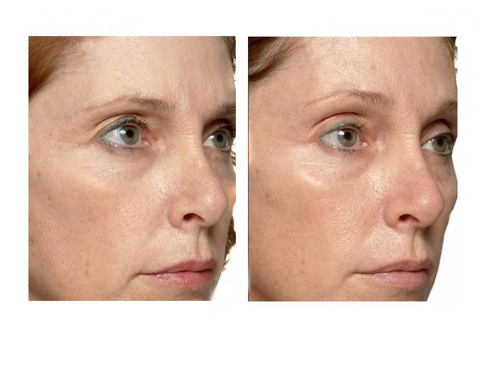 Thermage skin tightening 12