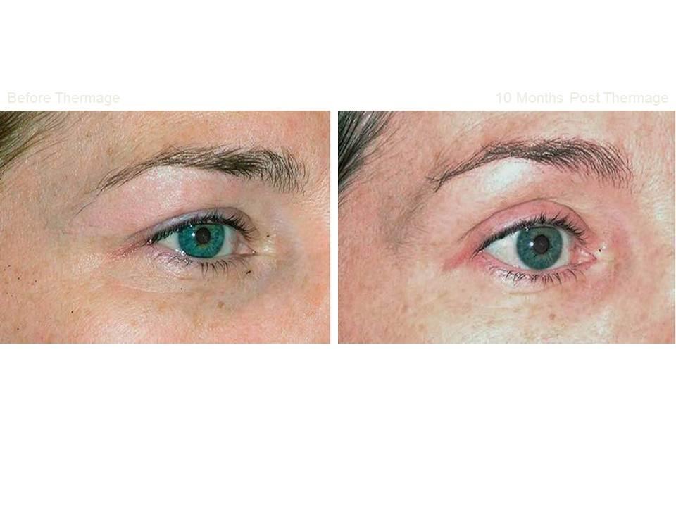 Thermage skin tightening 15