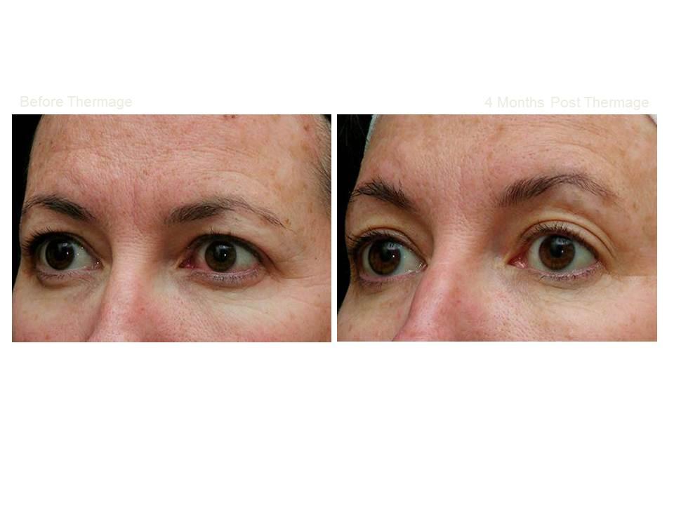 Thermage skin tightening 16