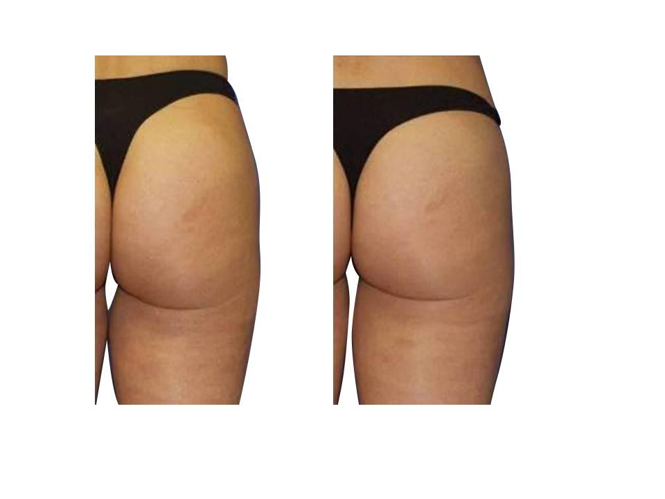 Thermage skin tightening 30