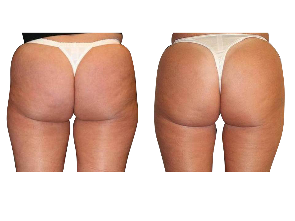 Thermage skin tightening 31