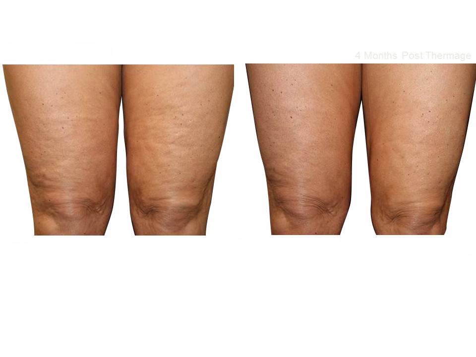 Thermage skin tightening 32