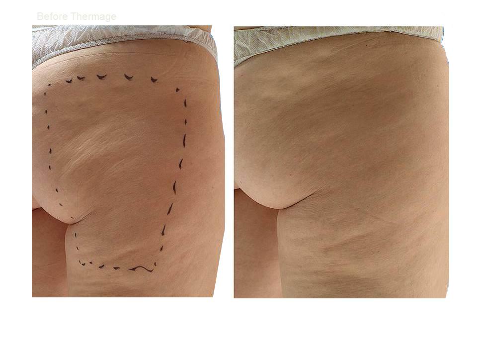 Thermage skin tightening 38