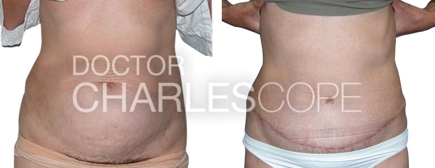 Abdominoplasty surgery (tummy tuck) patient before & after 1-1