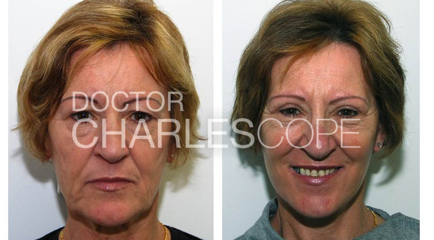 Before and after facelift surgery 01-3, front view