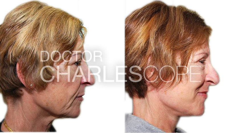 Facelift patient before & After 01-2, right side view