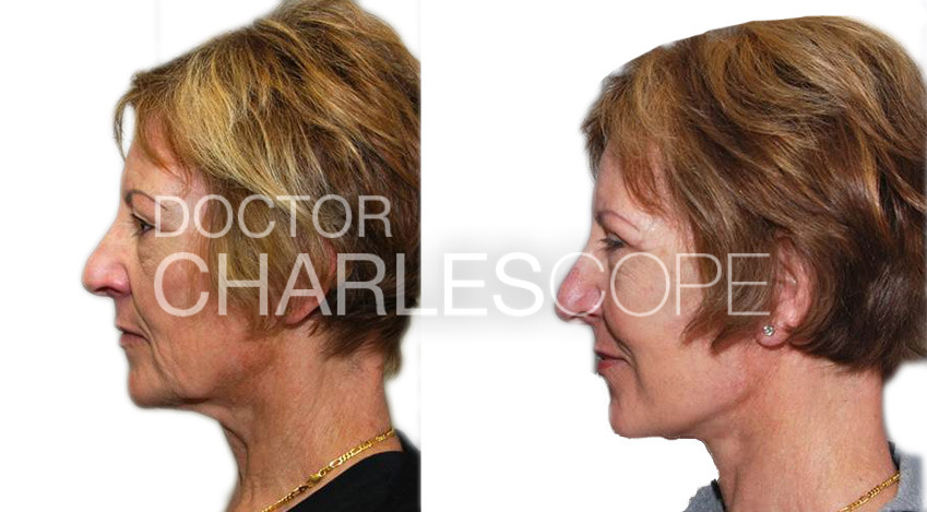 Facelift before and after 01, Dr Charles Cope patient, left side view