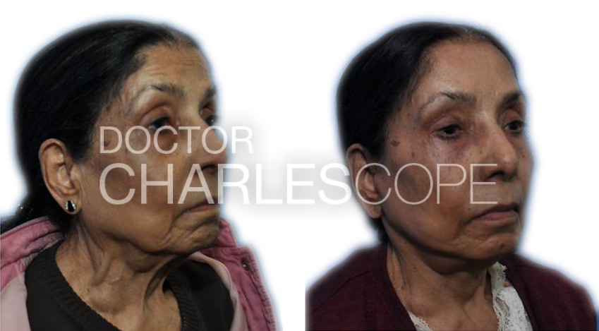 Before and after face lift, patient 04, photo 01, front angle view