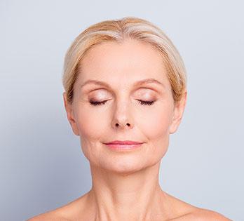 Facial fat transfer model 01, Dr Charles Cope