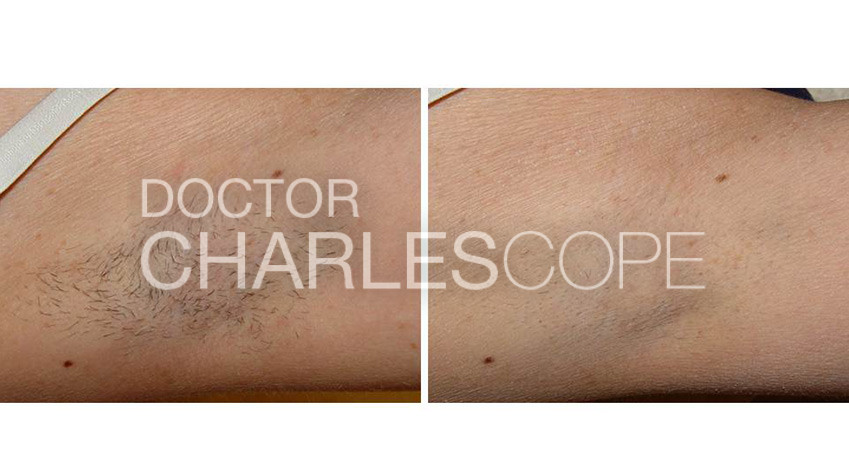 Patient before & after laser hair removal on armpit area 01