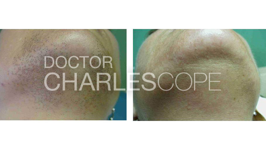Laser hair removal before & after 02, chin area, Dr Charles Cope