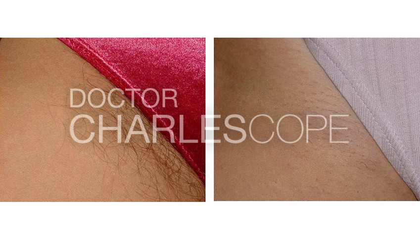 Laser hair removal before and after 03 - bikini area, Dr Cope