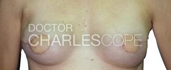 lat dorsi breast recon1 1