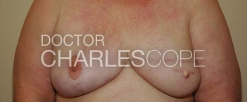 lat dorsi breast recon3 1